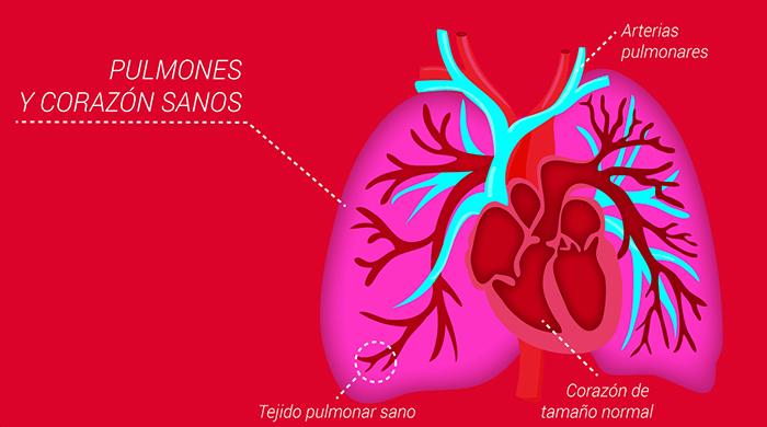 ¿Cuánto tiempo puedo vivir con hipertensión pulmonar?